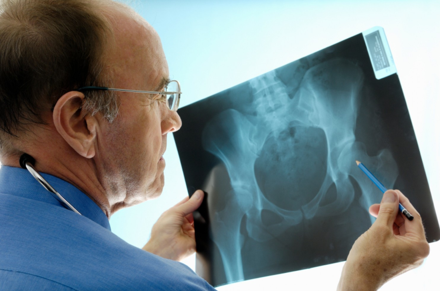 Hip Fractures in 65+ Caused by Falls